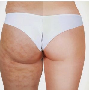 Cavi-lipo treatment before and after