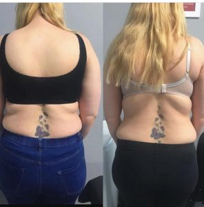 Fat Freezing before and after