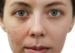 SkinTherapy-1