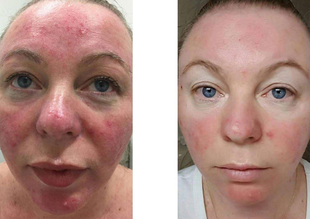 SkinTherapy