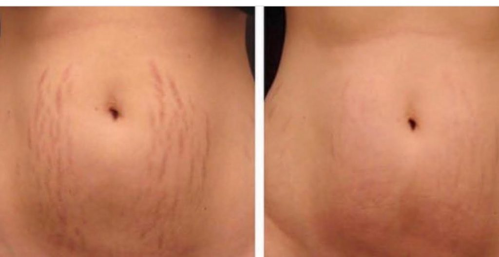 Stretchmarkremovaldermarollerfew-sessions-of-ipl-skin-rejuvenation