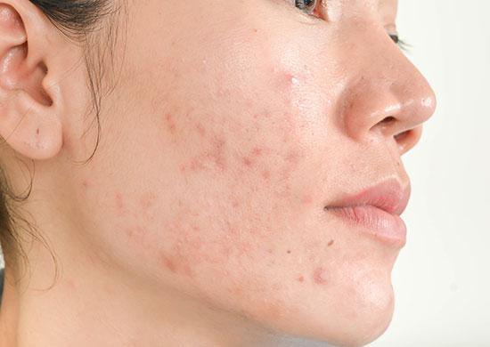 acne-scar-550